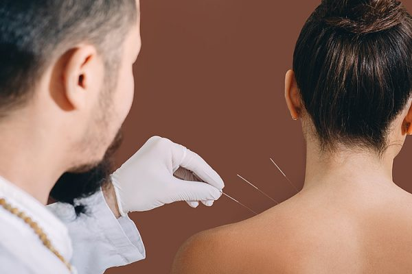 Woman receiving acupuncture in Toowoomba